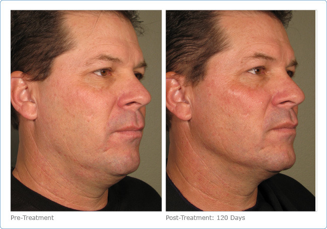 Men S Ultherapy For Sagging Skin Colorado Springs Co